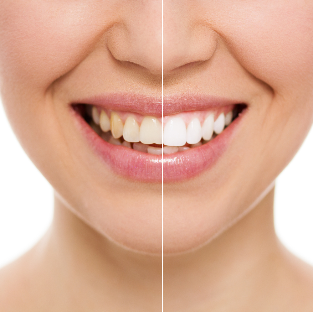 Before and after of woman's smile makeover