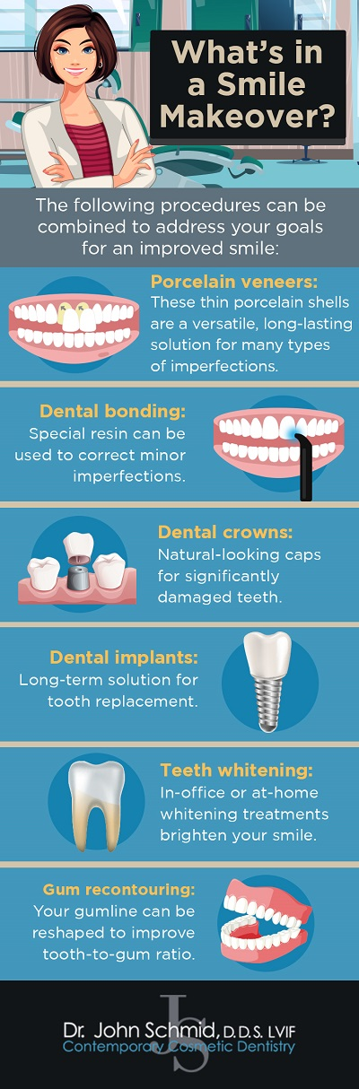 smile makeover infographic