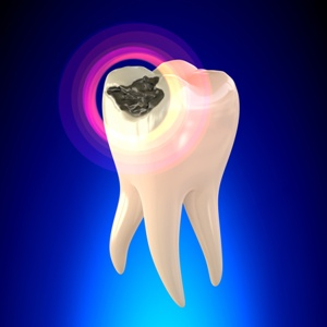 Root Canal Treatment for Severe Tooth Decay | Austin TX