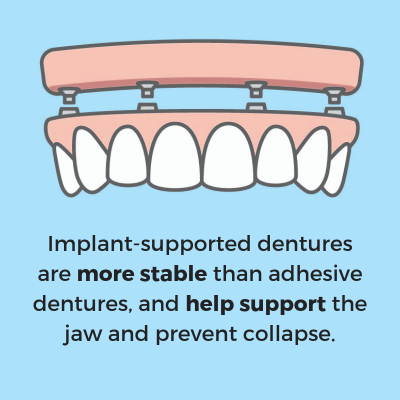 Implant supported dentures have many advantages | Dr. John Schmid | Austin implant dentist