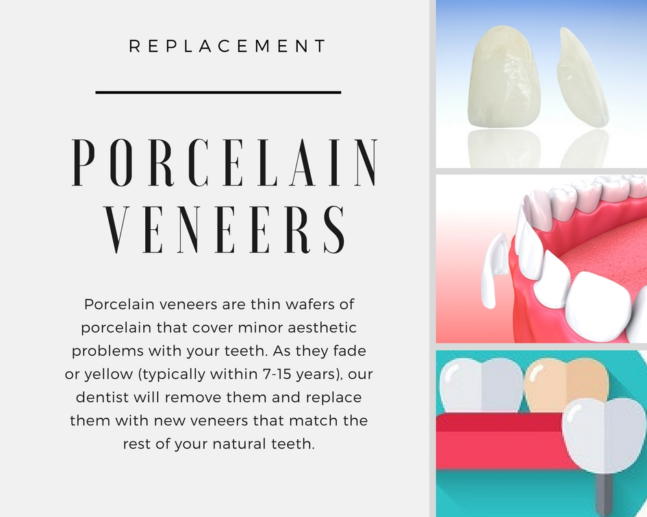 Replacing Porcelain Veneers - What You Should Know | Dr Schmid