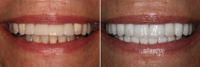 porcelain veneers replacement before and after - actual patient results